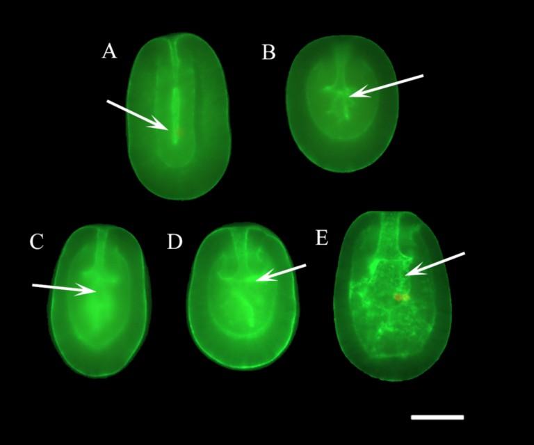 Phalloidin Staining: Wholemount phalloidin flourescent microscopic images of developing F. scutaria larvae stained for actin with AlexaFlour 488-conjugated phalloidin.