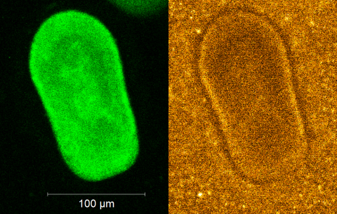 Confocal images of a Day 3 larvae showing fluorescence from GFP (left) and distribution of DyLight-coated gold nanorod particles surrounding the larva in cryoprotectant (right).